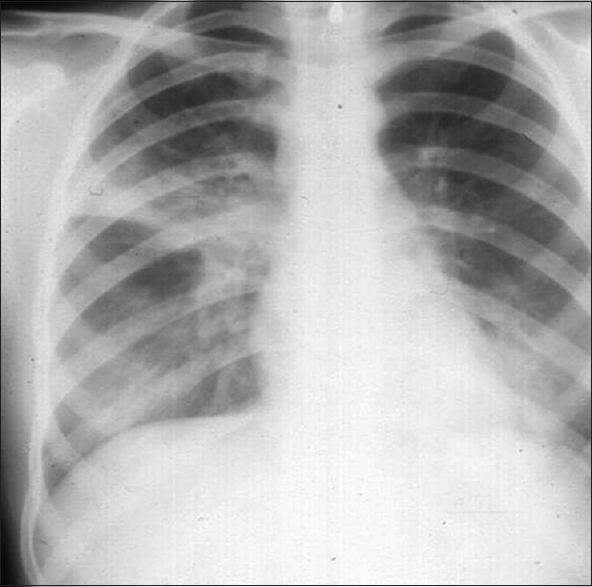 Figure 2: Chest X-ray of Case number 2.